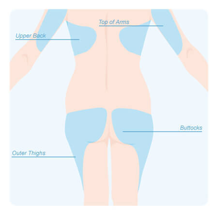 Areas of the back of the body that can be treated with laser liposuction.