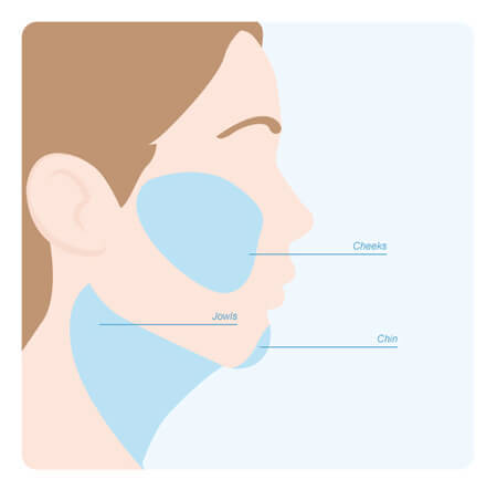 Facial liposuction can be used to treat a patients jaw, jowls and cheeks.