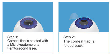 LASIK laser eye surgery explained part 1