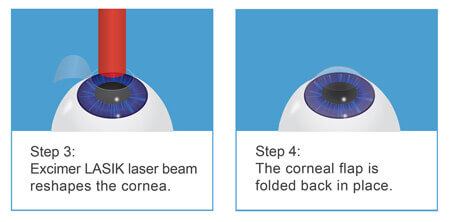 LASIK laser eye surgery explained part 2