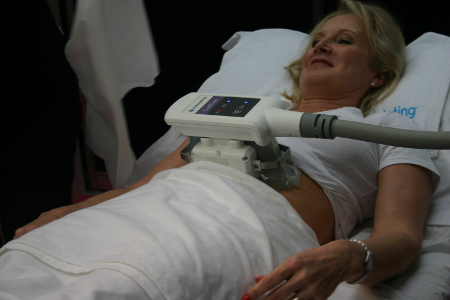 Coolsculpting in progress
